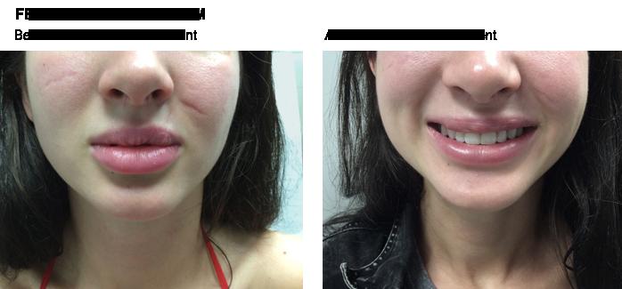 dermal_filler_before-after